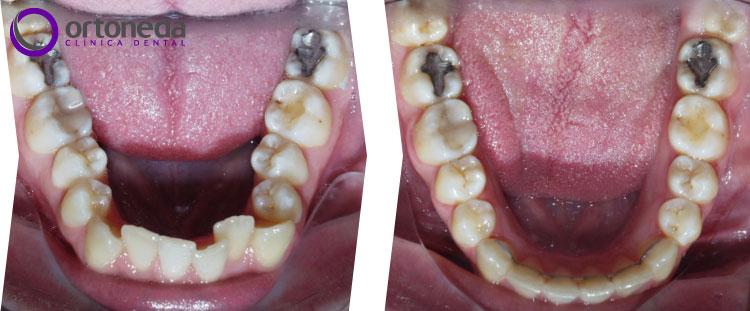 dientes_incluidos_caso_01_05