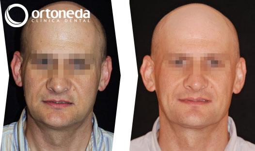 ortodoncia_adultos_caso_03_01