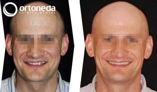 ortodoncia_adultos_caso_03_02