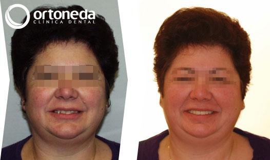 ortodoncia_adultos_caso_04_02