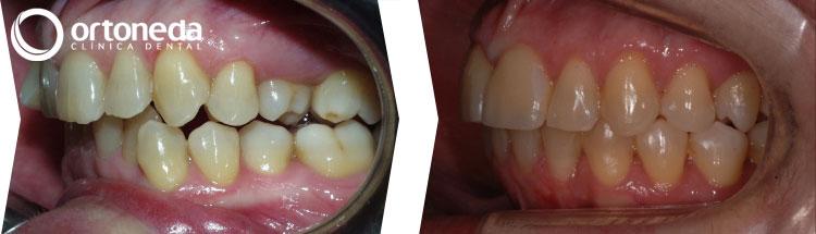 ortodoncia_adultos_caso_04_08